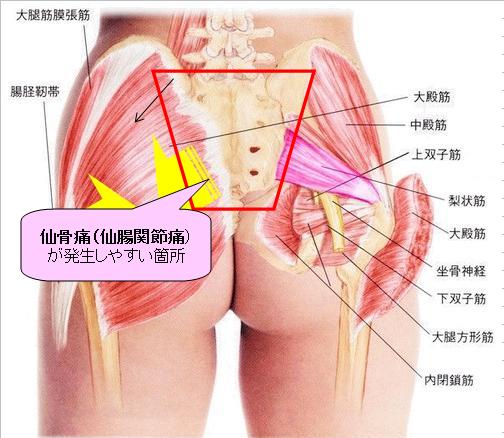 「仙腸関節画像」の画像検索結果