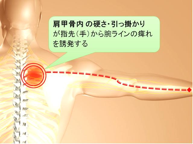 背中の痛み(肩甲骨痛)を伴う、手の痺れを改善